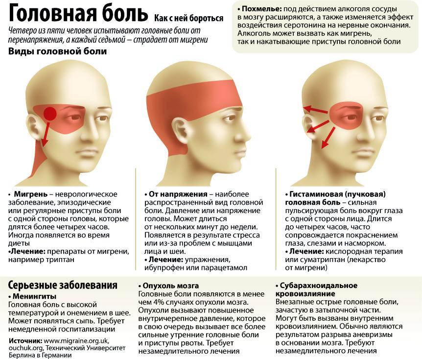 виды головных болей на фото