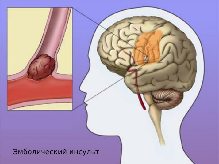 эмболический инсульт