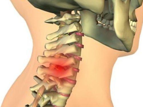 грыжа шейного отдела позвоночника при остеохондрозе