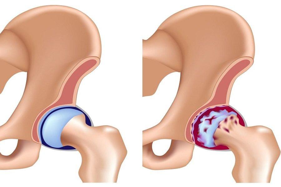 терапия коксартроза сустава
