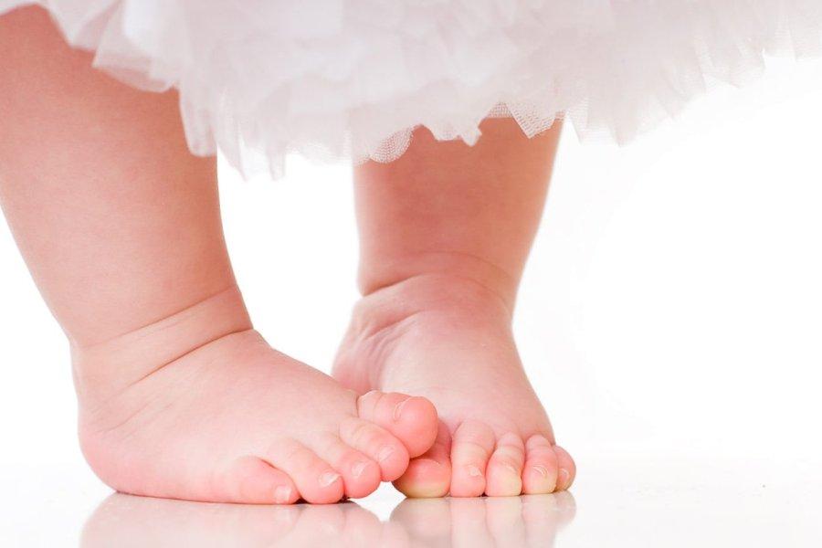 лечение косолапости в возрасте 1 год