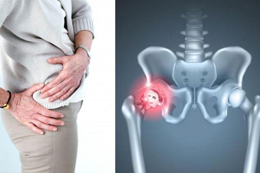 терапия: коксартроз тазобедренного сустава