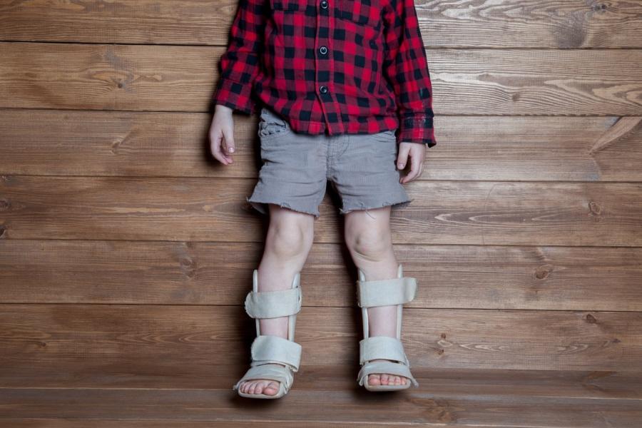 исправление детского косолапия