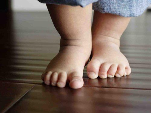 устранение косолапия у ребенка