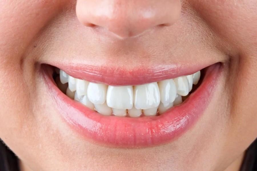улыбка - отреставрированные зубы