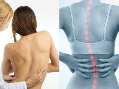 искривление в грудном отделе позвоночника