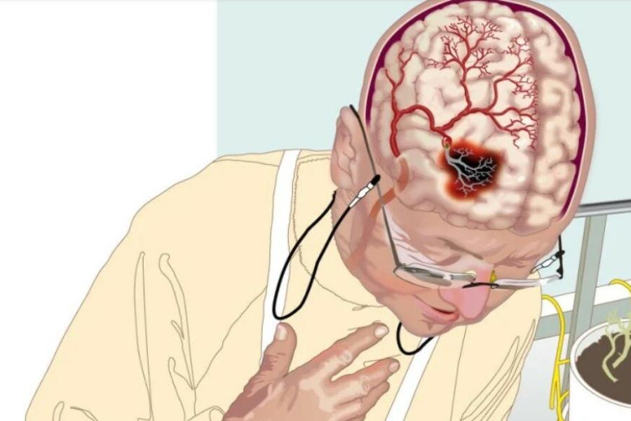 на какие виды подразделяется ишемический инсульт