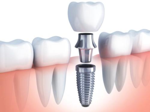 сколько стоят зубные импланты под ключ