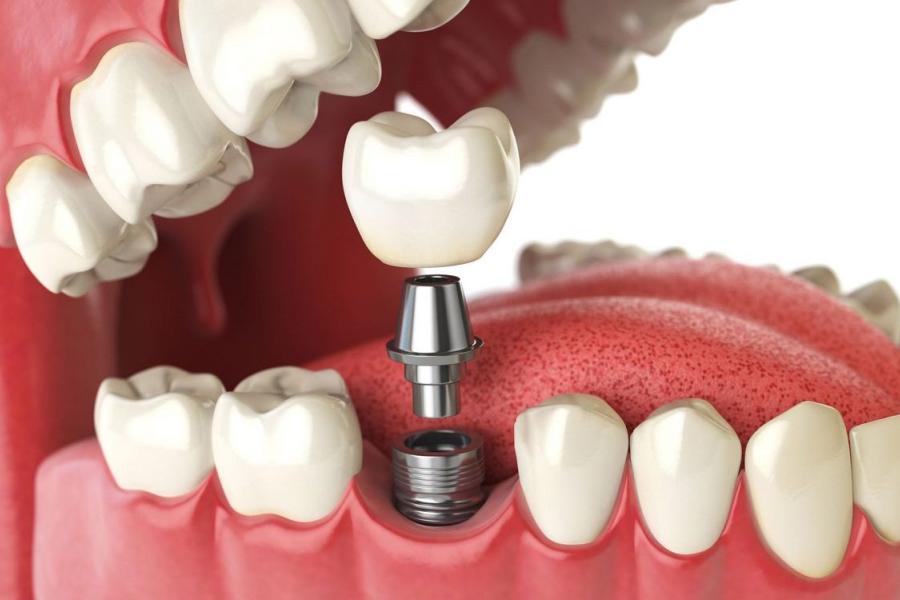 установить зубной имплант - сколько стоит