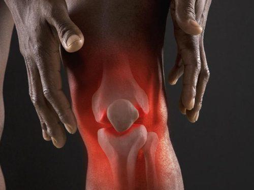проблемы коленного сустава