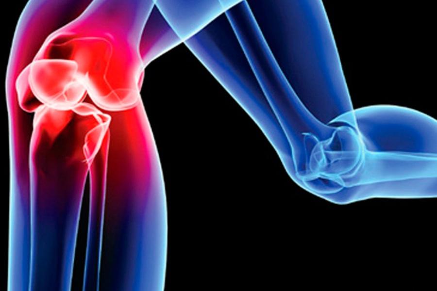поврежден коленный сустав