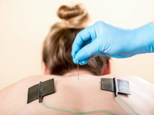 втэс - лечение электротоком