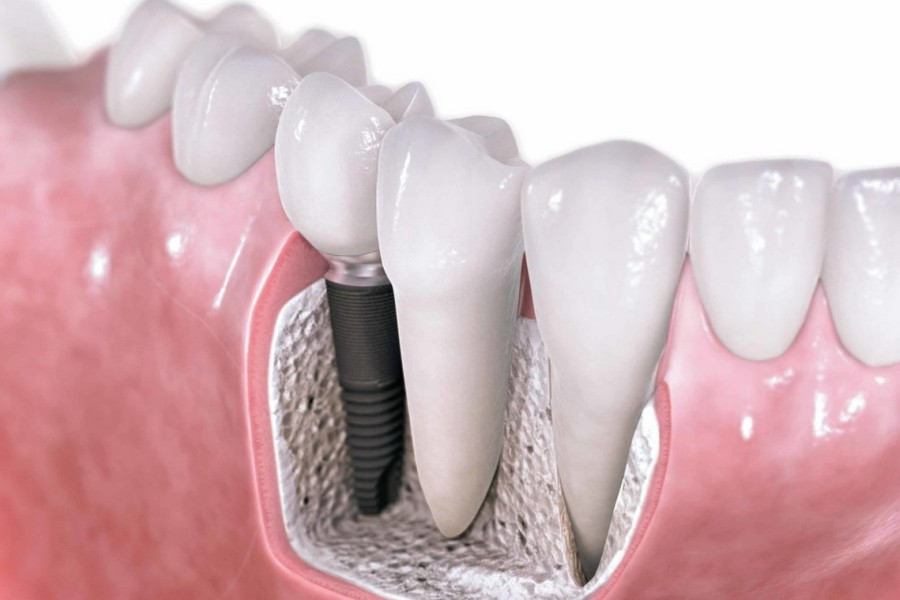 импланты - зубы