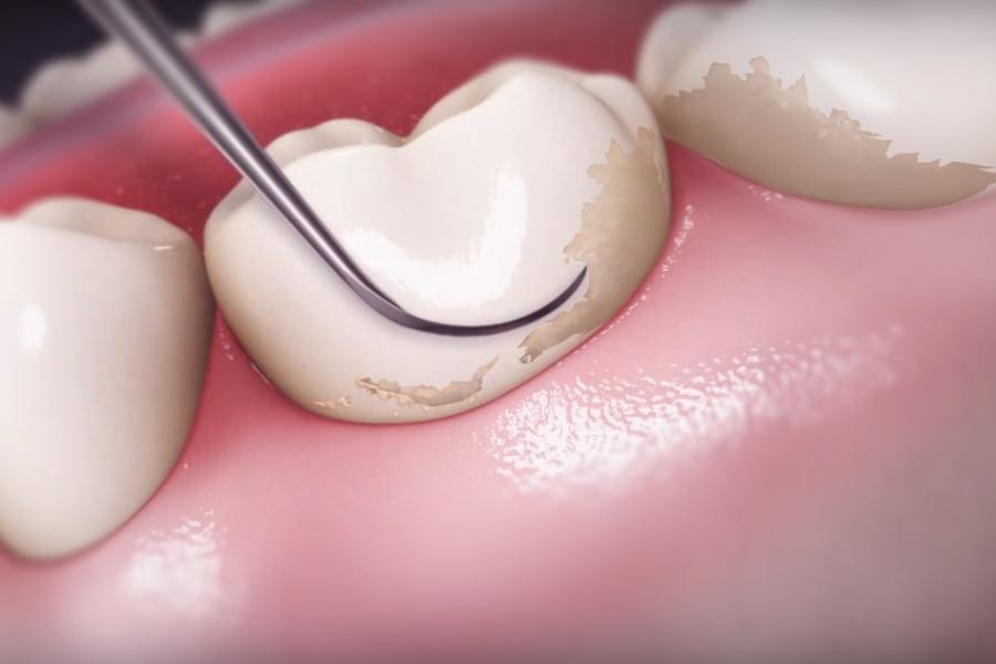 зубной камень - удаление